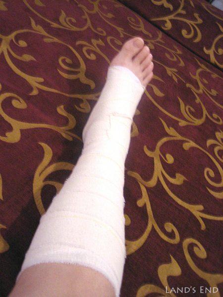 包帯を巻かれた足